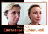 Фото до и после омоложения «Визаж Лифт» у Светланы Пшонкиной