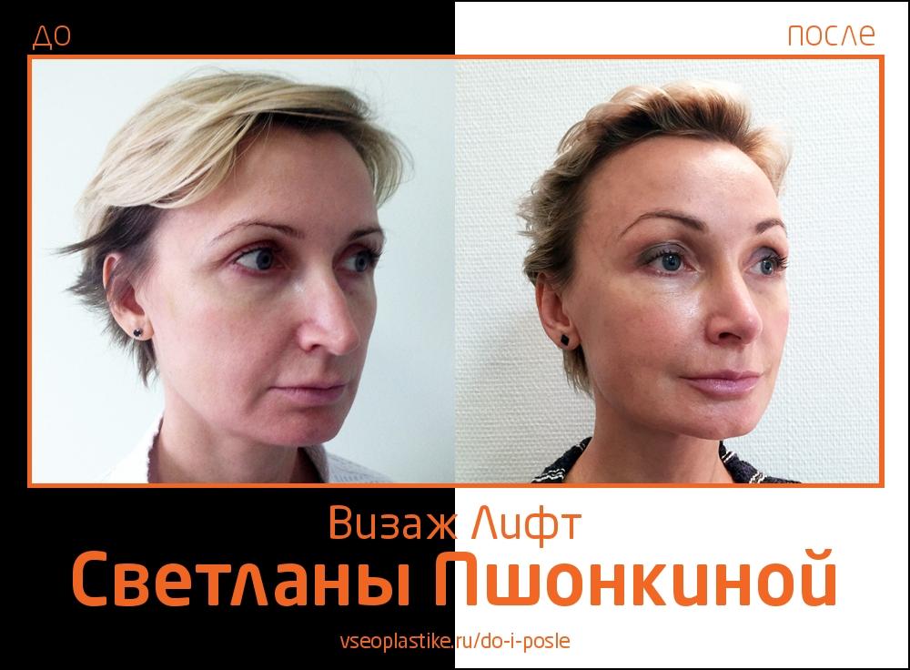 Фото до и после омоложения «Визаж Лифт» у пластического хирурга Светланы Пшонкиной