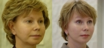Фото до и после смас-лифтинга у Валерия Якимца