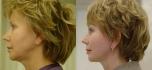 Фотографии до и после смас-подтяжки у Валерия Якимца