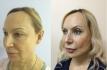 Результаты до и после Face TITE, комбинированной с блефаропластикой, у Олеси Андрющенко