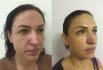 Результаты до и после подтяжки лица Face TITE у Олеси Андрющенко