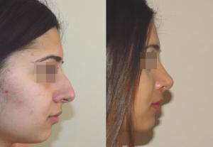 Фото до и после ринопластики у пластического хирурга Геворга Степаняна