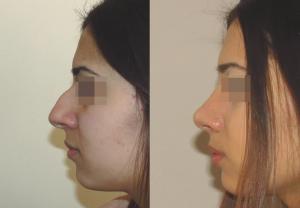 Фотографии до и после ринопластики у пластического хирурга Геворга Степаняна