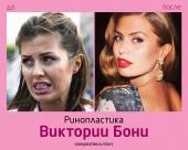 Вкитория Боня до и после ринопластики