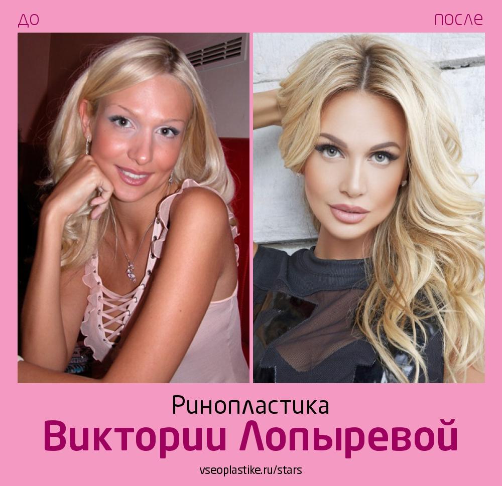 Виктория Лопырева до и после ринопластики