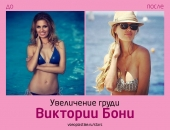 Виктория Боня до и после увеличения груди