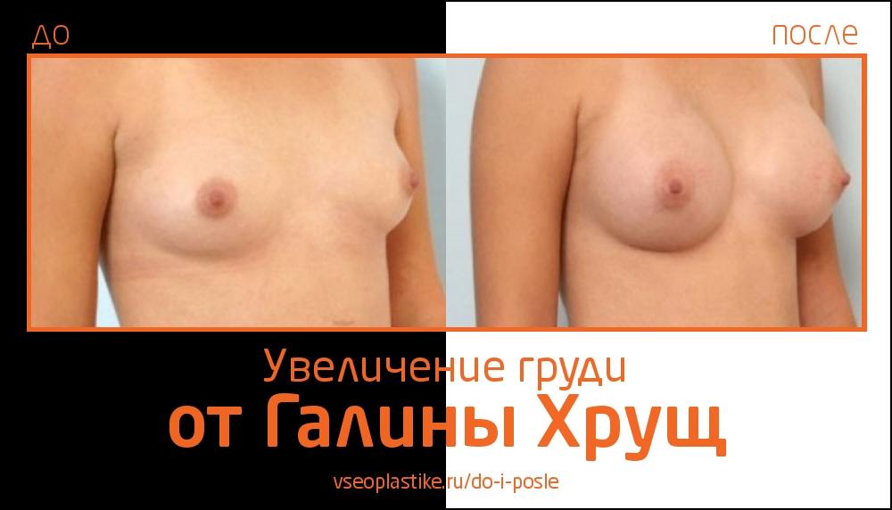 Увеличение груди Галина Хрущ