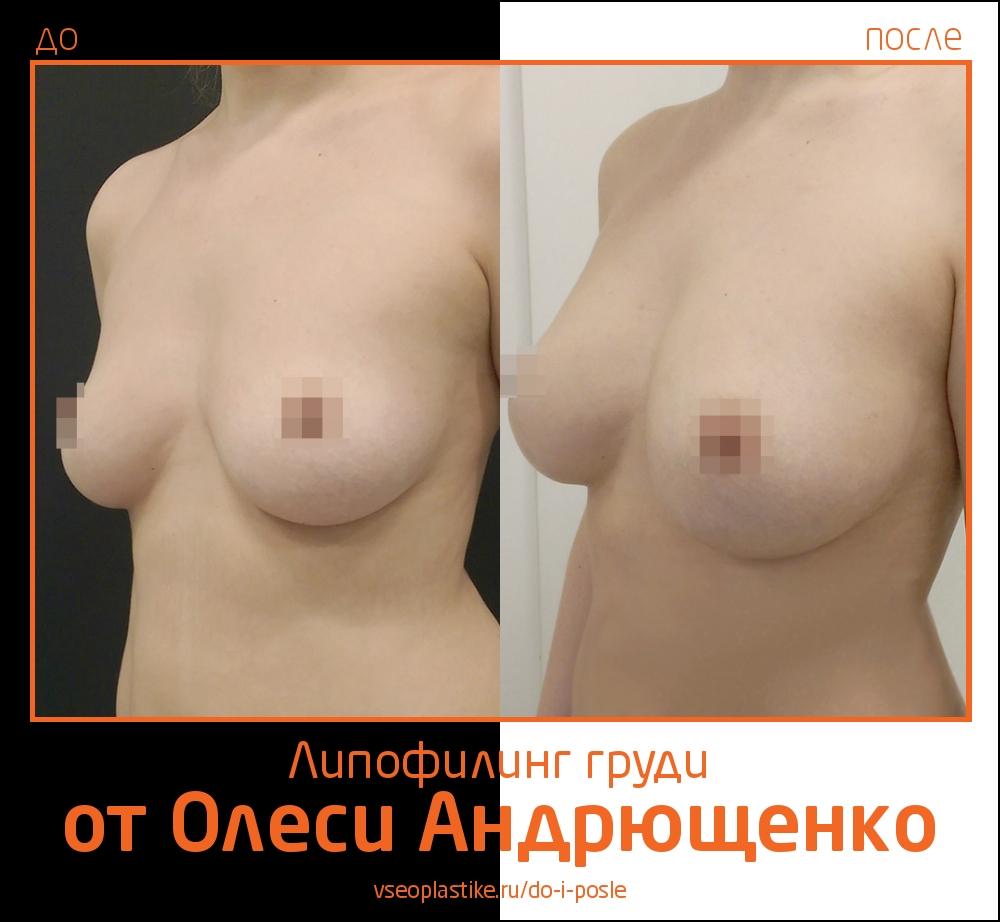 Фото до и после липофилинга груди у пластического хирурга Олеси Андрющенко