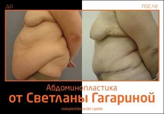 Светлана Гагарина. Фото до и после абдоминопластики