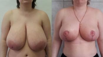 Фото до и после уменьшения груди у Александра Абакумова