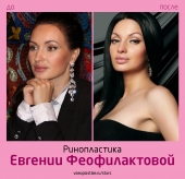 Евгения Феофилактова до и после ринопластики