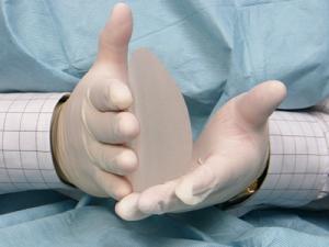 Импланты для увеличения груди