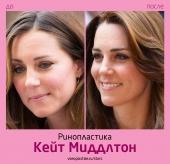 Кейт Миддлтон ринопластика