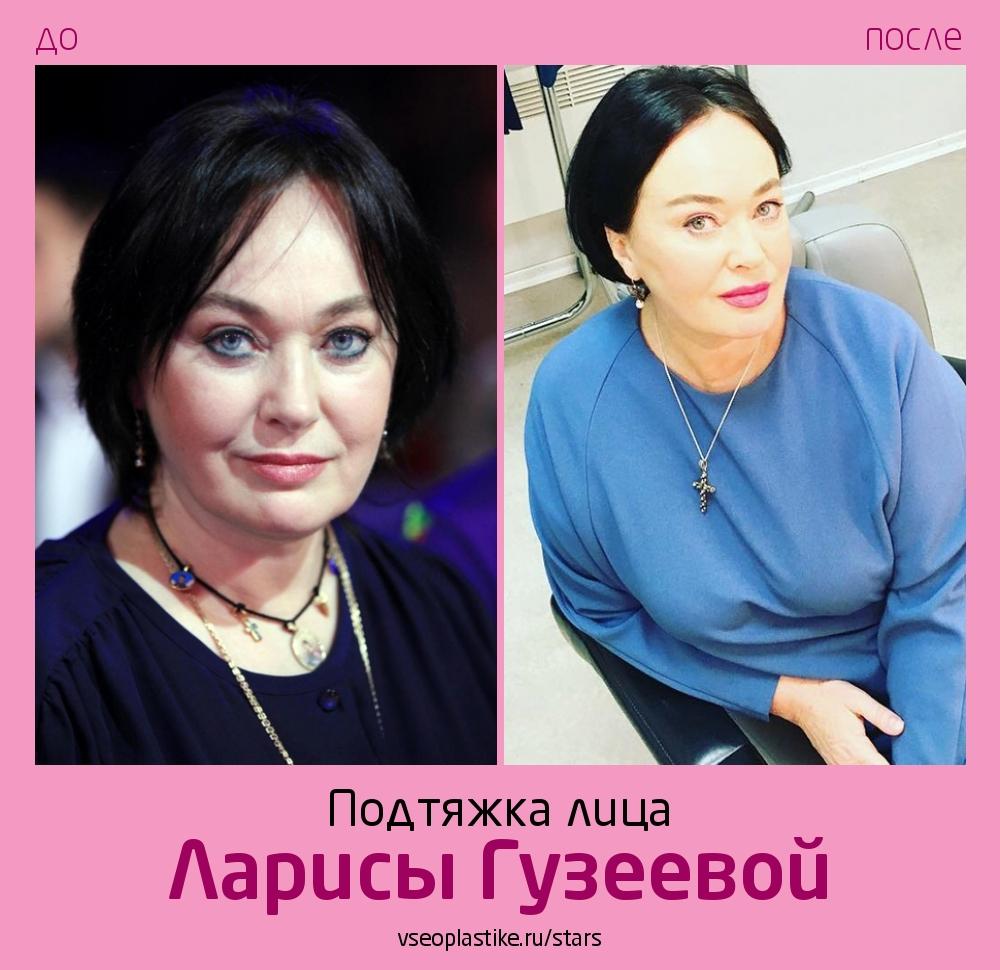 Лариса Гузеева до и после подтяжки лица