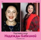 Надежда Бабкина до и после подтяжки лица