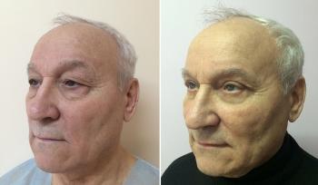 Мужская блефаропластика у пластического хирурга Олеси Андрющенко