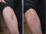 Пикосекундным лазером удаляли татуировку на руке пациента