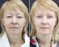 Фотографии до и через две недели после блефаропластики и липофилинга у Аллы Аликовой