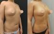 Фото до и после увеличения груди у доктора Владимира Зленко