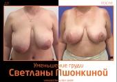 Светлана Пшонкина. Фото до и после уменьшения груди