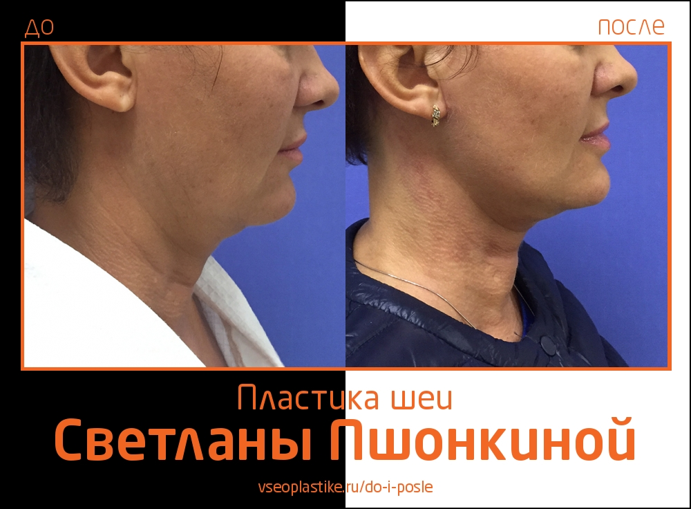 Светлана Пшонкина. Фото до и после подтяжки шеи