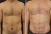 Фото до и после Vaser-липосакции у пластического хирурга Владимира Зленко
