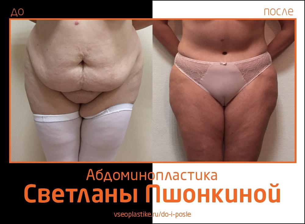 Светлана Пшонкина. Фото до и после абдоминопластики