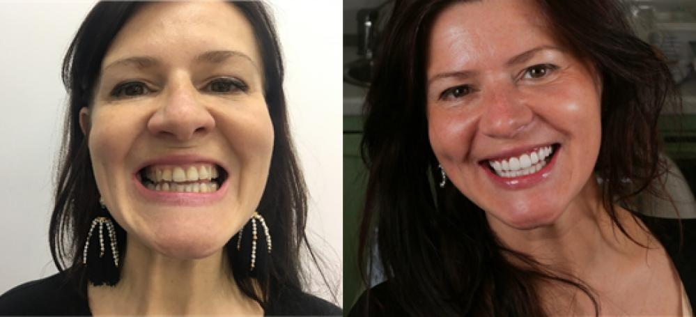 Юлие провели коррекцию зубов для создания красивой улыбки