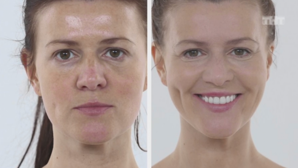 Юлия до и после преображения в Фрау Клиник