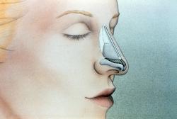 Костная мозоль после ринопластики: причины, профилактика, устранение