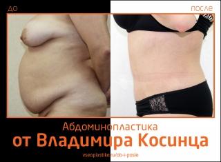 Владимир Косинец. Фото до и после абдоминопластики