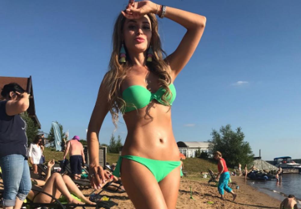 Абдоминопластика Анны Калашниковой
