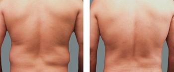 Фото до и после липосакции боков