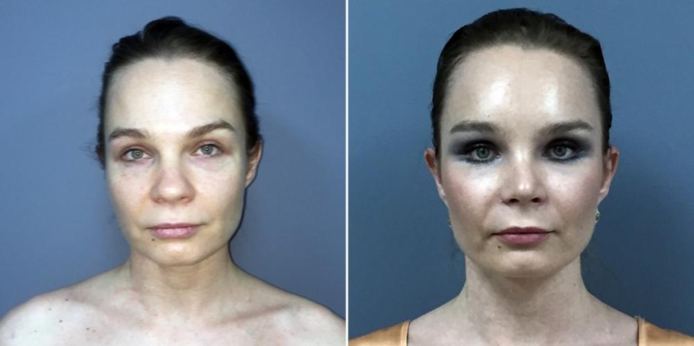 Визаж Лифт. Пациентка до и после омоложения. Светлана Пшонкина