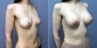 IDEAL BREAST. Увеличение груди. Светлана Пшонкина