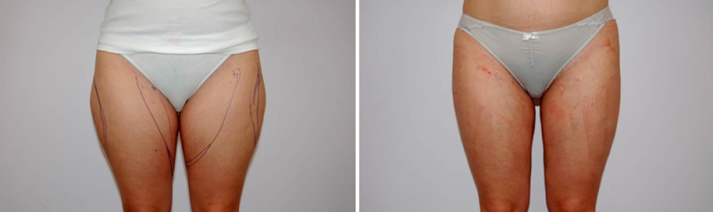 Радиочастотная липосакция body tite. Фото до и после
