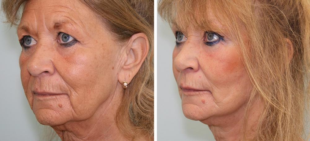 Подтяжка лица. Фото до и после