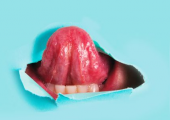 Восстановление языка тканью с предплечья