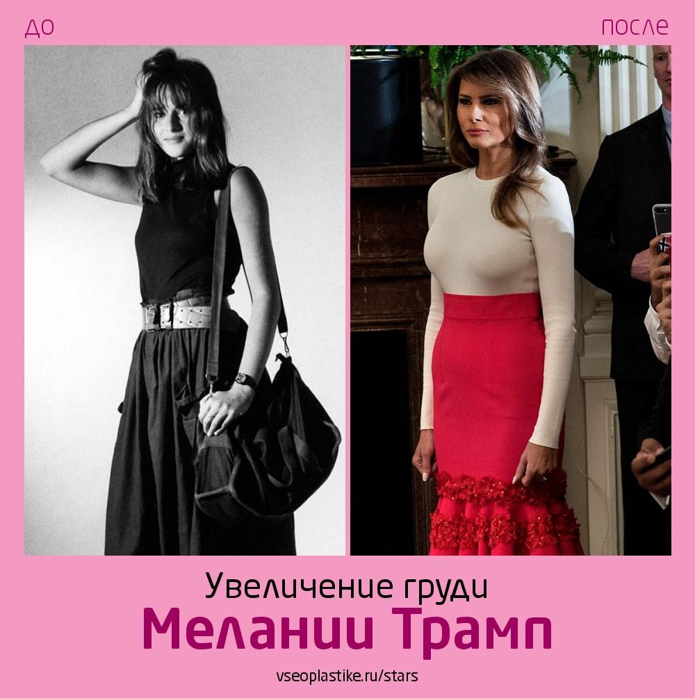 Мелания Трамп до и после увеличения груди