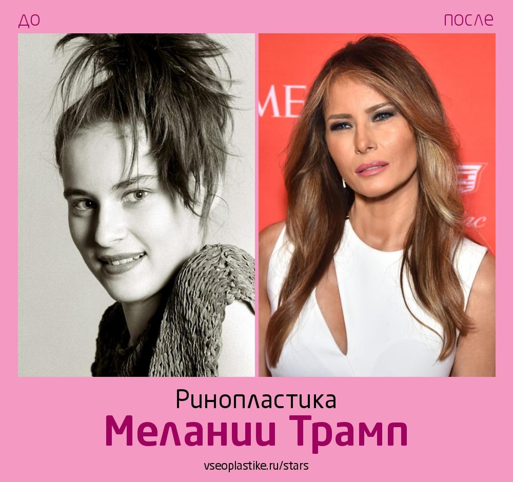 Мелания Трамп до и после ринопластики