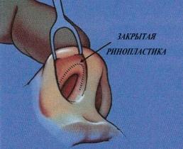 Закрытая ринопластика