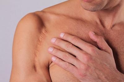 Ровный рельеф — кожа без рубцов и шрамов