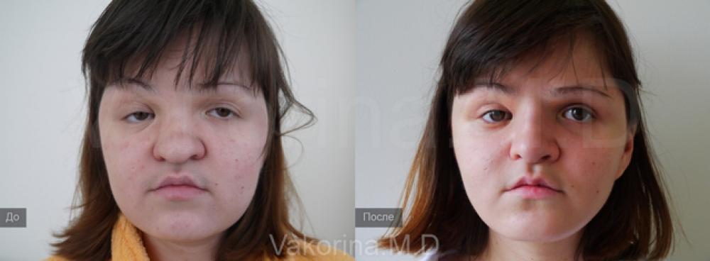 Реконструкция лица у пластического хирурга Екатерины Вакориной