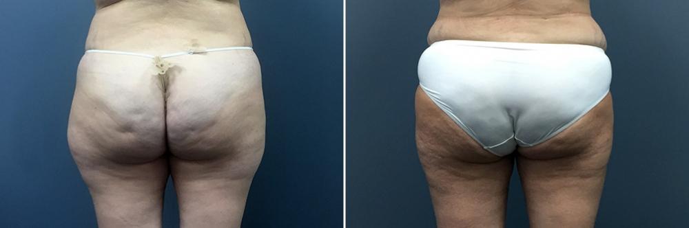 До и после радиочастотной липосакции бедер у пластического хирурга Светланы Пшонкиной