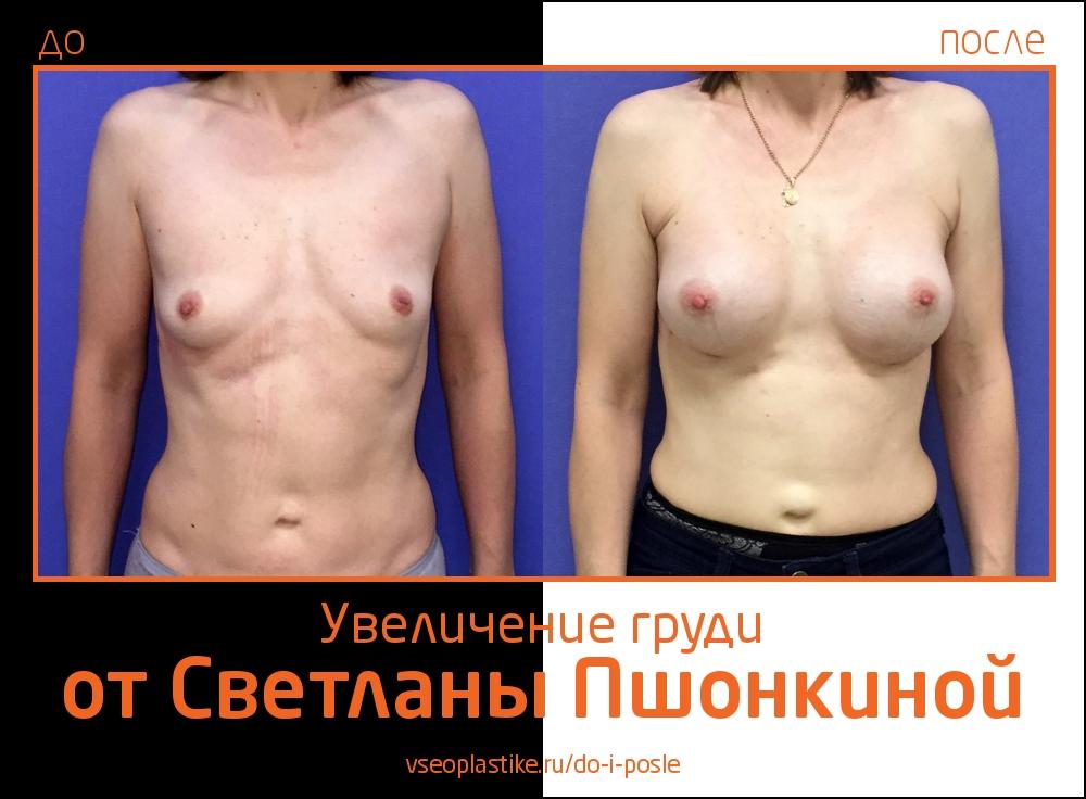 Светлана Пшонкина. Фото до и после увеличения груди