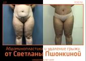 Светлана Пшонкина. Фото до и после абдоминопластики с удалением грыжи
