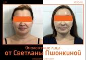 Фото до и после омоложения лица пластическим хирургом Светланой Пшонкиной