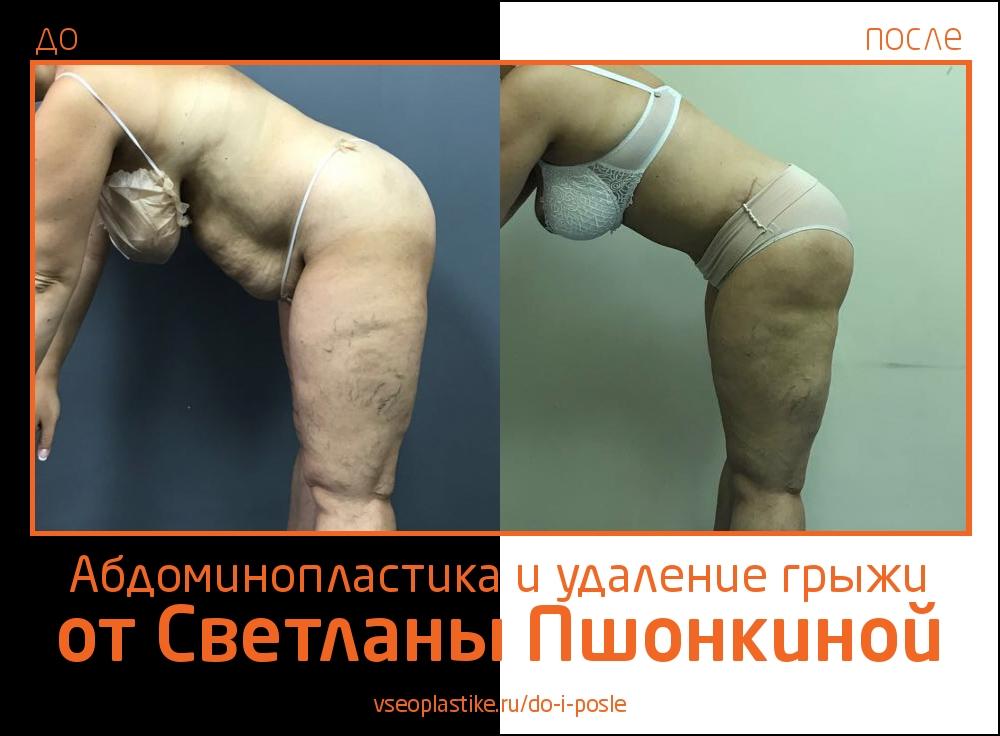 Фото до и после абдоминопластики с удалением грыжи  пластическим хирургом Светланой Пшонкиной