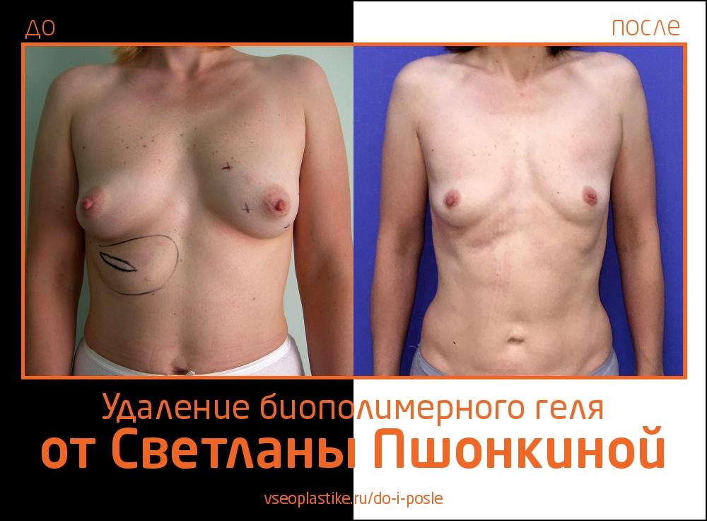 Светлана Пшонкина. Фото до и после удаления биополимерного геля из груди